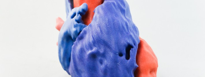 CT Scan of Human Heart. Printed on ProJet® 4500 by Objex Unlimited.
