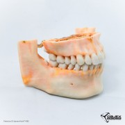 CT Scan of Human Teeth. Printed on a ProJet 4500 by Objex Unlimited.